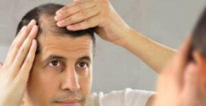 Minoxidil el medicamento que previene la caída del cabello